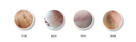 足部护理常见问题